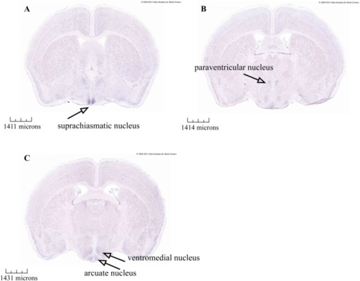 In situ hybridization data from the Allen Mouse Brain Atlas. Darker staining is seen in coronal sections of adult mouse brains indicating ADCY3 (adenylate cyclase 3) mRNA expression within the hypothalamus, including the (a) suprachiasmatic, (b) paraventricular, (c) ventromedial, and (d) arcuate nucleus. Data from Allen Mouse Brain Atlas 35 (http://mouse.brainmap.org/experiment/ivt?id=75&popup=true). [Color figure can be viewed in the online issue, which is available at wileyonlinelibrary.com.]