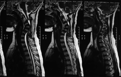 Sagittal T2 MRI done before the correction surgery. Post laminectomy, severe kyphosis can be seen with the spinal cord compressed and draped over the kyphotic vertebral bodies