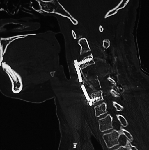 Postoperative CT scan (bone window). Correction of the angulation with implant in situ