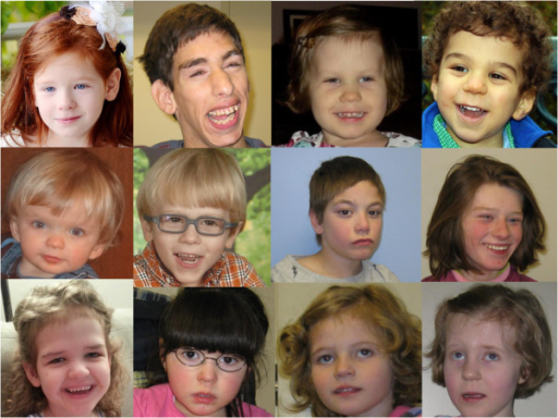 Images of individuals with Phelan-McDermid syndrome illustrating common dysmorphic facial features, including long eyelashes, bulbous nose, and pointed chin. All images are provided with guardian consent.