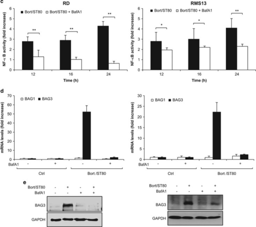 IκBα degradation is mediated by lysosomes upon ST80/Bortezomib cotreatment. (a) RMS cells were treated with 20 nM (RD) or 50 nM (RMS13) Bortezomib and 50 μM ST80 for 8 h. Lysosomal acidification was quantified by FACS measurement of Lysotracker Red stained cells. (b) RMS cells were treated with 20 nM (RD) or 50 nM (RMS13) Bortezomib and 50 μM ST80 in the presence and absence of 10 nM BafA1 for 8 h. NF-κB key regulatory proteins levels were assessed by western blot analysis. GAPDH was used as loading control. (c) RMS cells stably transfected with pTRH1- NF-κB EGFP plasmid were treated with 20 nM (RD) or 50 nM (RMS13) Bortezomib and 50 μM ST80 in the presence or absence of 10 nM BafA1 at indicated time points. NF-κB activation was measured by FACS analysis of FITC florescence. Data are shown as fold increase of GFP compared with untreated cells. (d and e) RMS cells were treated with 20 nM (RD) or 50 nM (RMS13) Bortezomib and 50 μM ST80 in the presence and absence of 10 nM BafA1 for 48 h. BAG1 and BAG3 mRNA levels were assessed by RT-PCR (d). BAG3 protein levels were assessed by western blot analysis. GAPDH was used as loading control (e). In (a, c and d), mean+S.D. of three independent experiments performed in triplicate are shown; *P<0.05; **P<0.01