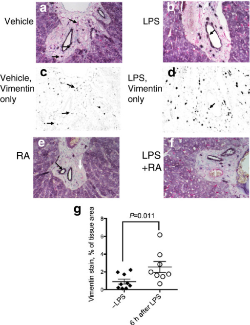 Co-localization of ALDH1A1 protein expression and stellate cell/fibroblast marker, vimentin in liver from VAA rats. Results for VAD rats were similar and therefore are not shown. Dual IHC with anti-ALDH1A1 antibody and anti-vimentin antibody was performed followed by methyl green counterstaining for detection of nuclei. Staining controls for vimentin were similar to those shown for ED1 in Figure 4i. Panels c and d show false-color images after ilastik® processing (see Methods) so that only pink (vimentin) signals are visible as black. Arrows illustrate some of the cells that co-stained with purple (ALDH1A1) and vimentin signals (Figure 5a-f). Figure 5e illustrates the intense ALDH1A1 staining around bile duct structures (black arrow) and its absence around the arterial smooth muscle region (white arrow), which is also apparent in other sections. Magnification x 400. Figure 5g shows the tissue area occupied by vimentin staining, analyzed by ilastik®, which was significantly higher in the liver of rats treated with LPS (n = 8 animals) compared to those not treated with LPS (n = 9 animals, P = 0.011).