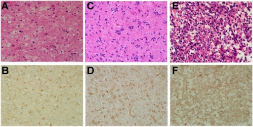 Hematoxylin-eosin (H&E) and immunohistochemical stains of glioma samples. Upper row (A, C & E): hematoxylin-eosin stains, magnification 400×; lower row (B, D & F): immunohistochemical stains of CXCR4, magnification 400×. The first column (A & B): F, 30 y, grade II; the second column (C & D): M, 61 y, grade III; the third column (E & F): F, 60 y, grade IV.