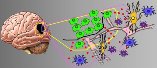 The tumor microenvironment in brain tumors. Scheme of the brain tumor microenvironment and its various compartments. Tocover the heterogeneity of malignant gliomas the tumor zone model classifies gliomas into three distinct tumor zones [3]. Left, given is thetumor core or tumor zone I (TZI, black spot), peritumoral zone (yellow encircled), and the tumor zone III (margenda encircled). Right,higher magnification of the boxed area. The glioma microenvironment impacts on host cells such as neurons (orange), vessels (pink),astrocytes (blue) and microglia (purple). Glioma cells are given in green. The glutamate gradient is shown in red dots. Abbreviations: TZ,tumor zones (numbered I to III).