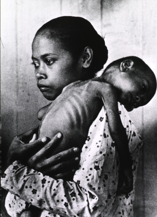 <p>A young woman is holding a malnourished child, whose head and arms just hang over her shoulder.</p>