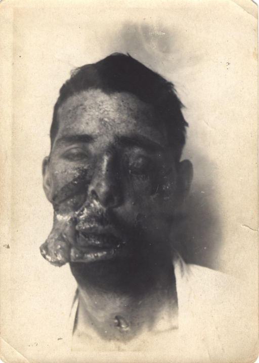 <p>Black and white photograph of an injured soldier with massive facial wounds and disfigurement. There is a visible wound on the neck.</p>