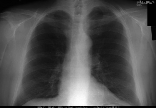 PA upright chest - there is an area of lucency noted in the apical left lung above a well-defined pleural line that is devoid of pulmonary vasculature.