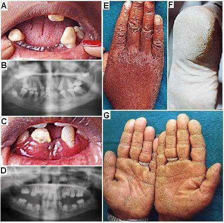 Clinical features of PLS. (A) Periodontitis affecting secondary dentition in the patient IV-3 at 16 yrs of age from the family IISC-PLS2. (B) Orthopantomogram of oral cavity of patient IV-3 at 11 years of age from the family IISC-PLS2 with severe periodontitis. All teeth in this patient are permanent and there is an extensive loss of alveolar bone both in maxillary and mandibular arches. (C) Periodontitis in the patient IV-4 at 12 years of age from the family IISC-PLS2. (D) Orthopantomogram of oral cavity of patient IV-4 at 12 years of age from the family IISC-PLS2 with severe periodontitis. All teeth in this patient are permanent and there is an extensive loss of alveolar bone both in maxillary and mandibular arch. (E) Knuckle hyperkeratosis in the patient IV-4 of the family IISC-PLS2. (F) Plantar hyperkeratosis in the patient IV-3 of the family IISC-PLS2. (G) Palmar hyperkeratosis (punctate type) in the patient II-2 of the family IISC-PLS3.