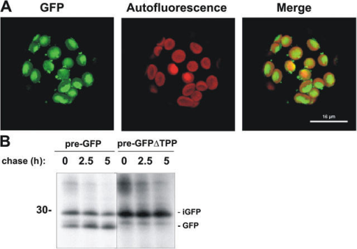 Pre-GFP and pre-GFPΔTPP are correctly targeted to chloroplasts in transfected tobacco protoplasts. Tobacco protoplasts were transfected with constructs expressing pre-GFP and pre-GFPΔTPP. (A) Confocal microscopy data after expression of pre-GFP for 24 h; the individual images were obtained using the red channel (shows pigment autofluorescence) or green channel for GFP fluorescence. The merged images are shown on the right. Bar, 16 μm. (B) Protoplasts expressing pre-GFP or pre-GFPΔTPP were pulse labeled with 35S-Met and 35S-Cys for 1 h and then chased with a mixture of cold Met and cold Cys for the times indicated above the lanes. The protoplasts were then lysed and subjected to immunoprecipitation using antibodies to GFP. The mobility of mature GFP is indicated (GFP) together with iGFP. Mobility of a 30-kD marker protein is indicated on the left of the autoradiograph.