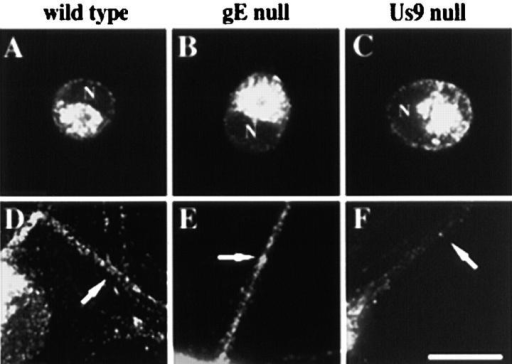 The axonal localization of the essential viral membrane protein gB requires Us9 but not gE. Less than 10% of the neurons in a culture were infected for 12 h with the wild-type (A and D), the gE- mutant (B and E), or the Us9- mutant (C and F) and then were fixed and permeabilized. Infected neurons were labeled with antibodies that recognize gB. A–C have image planes at the level of the cell bodies, whereas D–F have image planes at the substrate so that axons can be visualized. Arrows point to axons of infected neurons, and N indicates the nucleus of infected neurons. Bar, 25 μm.