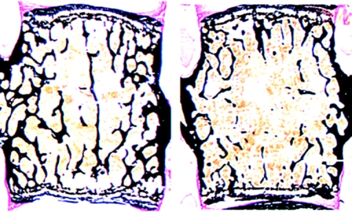 Mice lacking Lrp5 (right) have low bone mass in their vertebrae.