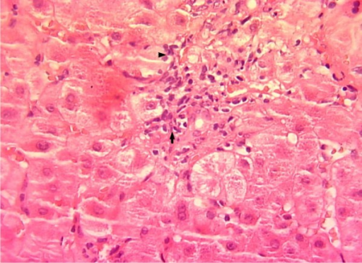 HE stain × 400: portal infiltrate composed of lymphocytes invading the bile duct epithelium (Arrow) and extension to the peri portal areas (Head of arrow).