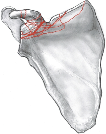"AP illustration of the scapula showing the 14 coracoid fracture patterns seen in this cohort. The patterns together yield the ""coracoid fracture map."""