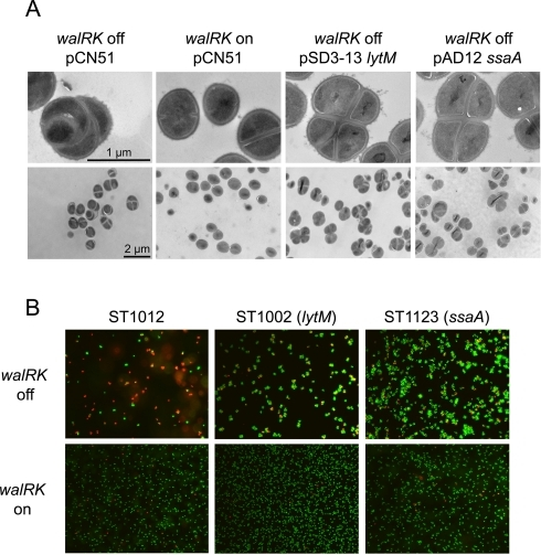 Overexpression of lytM or ssaA restores cell viability but not morphology to cells lacking the WalK/WalR TCS.Bacteria were grown in TSB CdCl2 0.25 µM. To produce the WalKR system in derivatives of S. aureus strain ST1000 carrying a Pspac-walRK chromosomal fusion and the indicated plasmids, 1 mM IPTG was added to the culture (walRK on). In the absence of IPTG, cells were depleted for WalKR (walRK off). A) Transmission electron microscopy ultrastructure of strains overproducing SsaA or LytM. Cells were grown in TSB-CdCl2 +/− 1 mM IPTG, harvested at an OD600nm = 1 (corresponding to exponential phase for the culture with IPTG and cessation of growth for the culture without IPTG) and embedded in thin sections for ultrastructure examination by transmission electron microscopy. Bars represent 1 µm for the upper panels and 2 µm for the lower panels. B) Viability assay of strains overproducing SsaA or LytM using the LIVE/DEAD BacLightTM assay. Two hours after reaching stationary phase, 10 ml of culture were sampled for fluorescent staining. For the control ST1012 strain without IPTG, the sample was taken 4 hours after cessation of growth following WalKR-depletion. Live bacteria appear green, following SYTO-9 staining, and dead cells are stained in red due to penetration of propidium iodide through compromised membranes.
