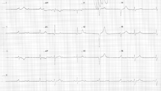 Twelve-lead electrocardiogram at presentation shows a third degree AV block