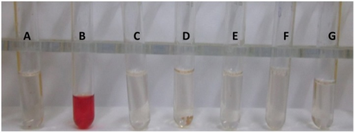 In vitro hemolysis test for testing the L-Asparaginase toxicity.A: negative control (without L-asparaginase); B: positive control (with double distilled water); C: 100 µg/ml; D: 50 µg/ml; E: 25 µg/ml; F: 12.5 µg/ml; G: 6.25 µg/ml of L-asparaginase.