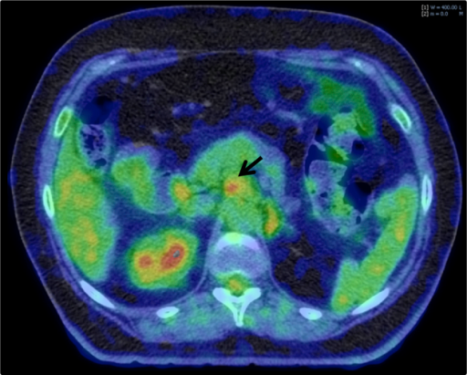 Axial image from 18F-fluorodeoxyglucose positron emission tomography (FDG-PET) in a patient with locally advanced pancreatic cancer. An FDG-avid peripancreatic node that was not identified at the time of diagnostic CECT was detected and included in gross tumour volume definition at the time of radiotherapy planning.