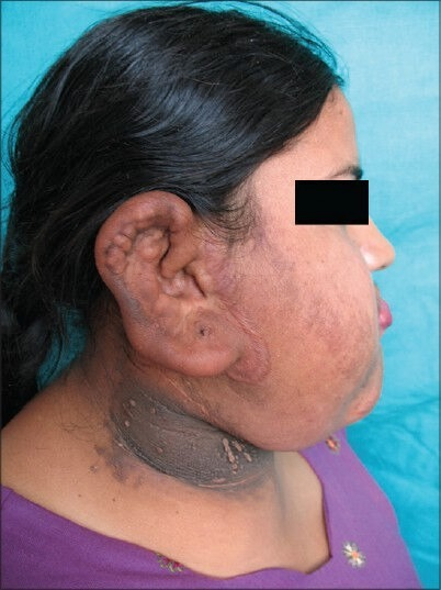 Nodular growths localized on the right side of the neck with dark colored underlying skin