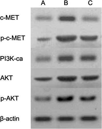 Protein expression in colony-forming cells from the combined erlotinib and radiation group before and after c-MET inhibition. The radiation dose was 6Gy. Erlotinib was used at a concentration of 20 nM. The anti-c-MET monoclonal antibody was applied at a concentration of 10 nM too. (A) Control group. (B) Combined erlotinib and radiation group. (C) Combined erlotinib and radiation with anti-c-MET monoclonal antibody treatment group.