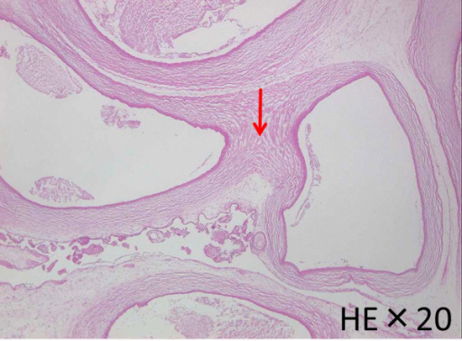 Intraplacental vessels were extremely dilated and walls of these vessels were fused (red arrow).