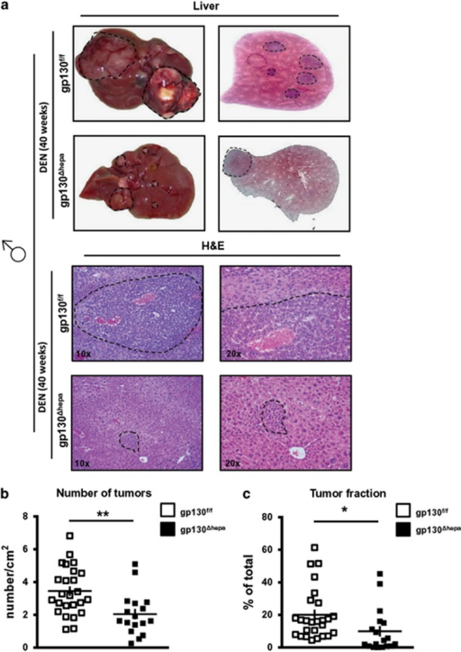 Ablation of gp130 in hepatocytes reduces HCC progression in males. Male gp130f/f and gp130Δhepa mice were treated with a single i.p. DEN injection and killed 40 weeks later. (a) Representative macroscopic views of the livers are shown (dotted circles represent dysplastic nodules; left panel). H&E staining was performed from the same livers and photographed at different magnifications (center and right panel). (b) Tumors of randomly chosen H&E slides were counted by an experienced pathologist in a blinded session. Total area of the liver section was measured and results calculated as tumors per cm2 of liver section. (c) The total area of the section and the area of the tumor were measured. Tumor area was calculated as the percentage of total. Data are expressed as mean±SEM (n=5; *P<0.05; **P<0.01).