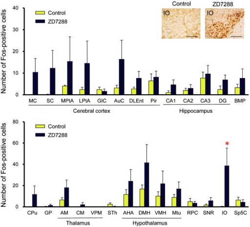 Immunohistochemical analysis of Fos expression induced by ZD7288 in TRMR rats.Effects of ZD7288 on regional Fos expression in TRMR rats. Inset: representative photographs of Fos-immunoreactive cells in the IO. Scale bar: 100 μm. Data are presented as the mean ± SEM of seven (vehicle) or eight (ZD7288) animals. *P<0.05 vs. control (vehicle).
