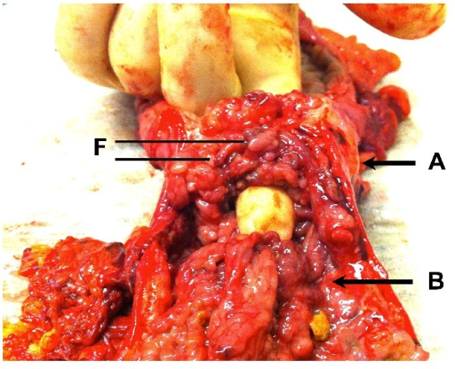 Section from left hemicolectomy showing a constricting mass in the distal transverse colon (Label A) and an adjacent synchronous mass in the proximal descending colon (Label B). Filiform polyps (F) are seen within both lesions.