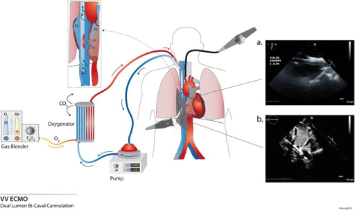 Bicaval dual-lumen cannula for venovenous extracorporeal membrane oxygenation (VV ECMO; Avalon Elite®) and corresponding echocardiographic views. This picture depicts a bicaval dual-lumen cannula, inserted via the internal jugular vein. The drainage holes are located in the superior vena cava and inferior vena cava (IVC), and the reinjection hole is facing the tricuspid valve (TV). a Mid-esophageal bicaval view showing the cannula within the right atrium (RA) (transesophageal echocardiography). b Transthoracic subcostal view showing the cannula in the RA; the tip of the cannula is located in the IVC. The reinjection hole is visible, oriented towards the tricuspid valve. RV, right ventricle