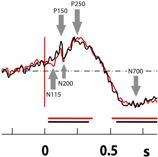 Visual recognition task in the ANT: N 115- P 150- N 200- P 250 and N700 complex (the mean from all thalamic contacts from all patients in bipolar montage during the recognition task).Arrows mark fast and slow ERP components N115, P150, N200, P250, and N700. The black curve indicates a new stimulus (new picture); red indicates a repeated stimulus during the recognition phase (old picture). On axis x is time (in s). The statistical significance to baseline is highlighted by black and red horizontal lines.