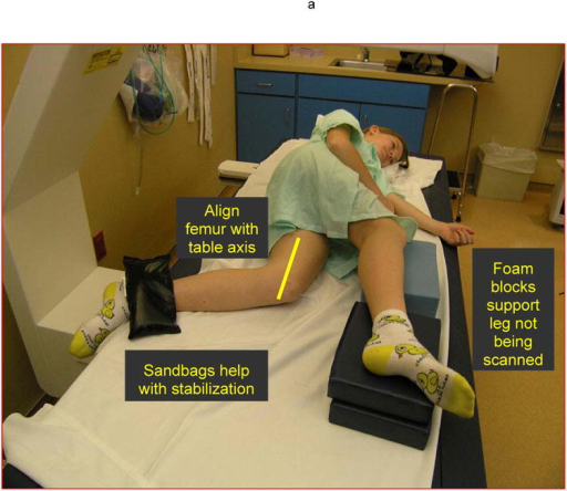 (A) Patient positioning for the left lateral distal femur scan showing the child in a side-lying position with positioning devices (foam blocks and sand bags) to assist in attaining a comfortable and stable position. The femur is centered on the table and parallel to the edge. The forearm scan mode is used to obtain the scan. (B) Analysis of the scan requires insertion of region of interest boxes. The width and height of each region of interest box is illustrated in the figure. (C) The three regions of interest are illustrated in the figure.