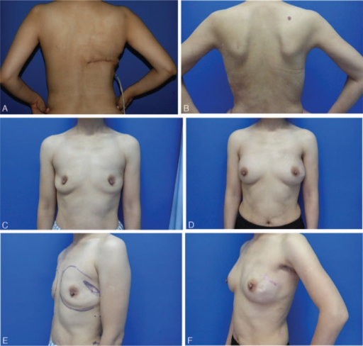 Patient 1. Postoperative view 5 months. (A) and (B) There is little appreciable difference on the back, compared to the other patient with a long donor-site scar who underwent the traditional latissimus dorsi flap harvesting technique for breast reconstruction. (C) and (D) The appearance of the breasts after reconstruction and cosmetic augmentation is better than that before the correction. (E) and (F) Scars of the 3 trocar ports along the anterior axillary line and posterior axillary line are barely noticeable.