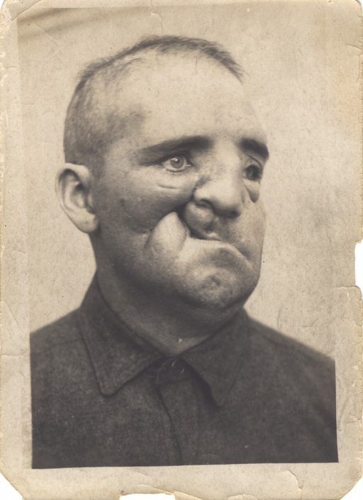 <p>Black and white photograph of an injured soldier with a facial wound to his right cheek, leaving the cheek and lip severely disfigured.</p>