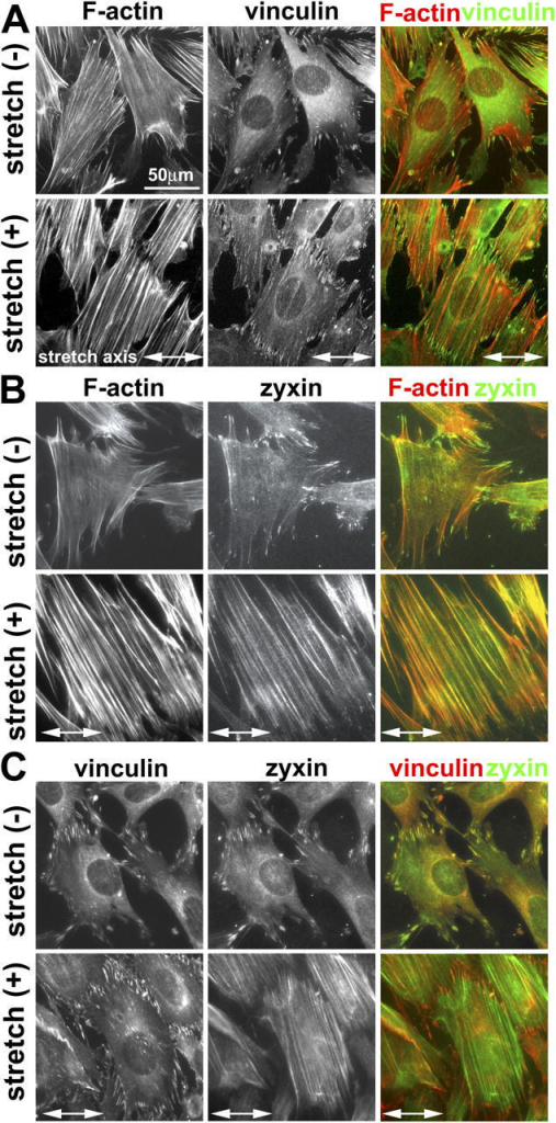 Cyclic stretch induces zyxin mobilization from focal adhesions to the actin cytoskeleton. (A) Fibroblasts on unstretched membranes (−) or subjected to uniaxial cyclic stretch (+; 1 h at 15% and 0.5 Hz) aligned and reinforced their actin filaments (phalloidin staining), whereas the focal adhesion protein vinculin remained at adhesion sites. (B) In contrast to vinculin, unidirectional cyclic stretch resulted in the mobilization of zyxin from focal adhesions to actin filaments. (C) Double labeling of vinculin and zyxin revealed their colocalization at focal adhesions in unstretched cells. Detection of vinculin in focal adhesions of stretched cells in which zyxin has been mobilized to actin filaments clearly illustrates that focal adhesions persist after stretch and highlight the reduced zyxin levels at those sites.