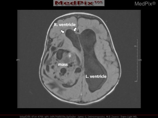There is a heterogeneous lesion that appears to be in the right lateral ventricle.  It is causing marked enlargement of the lateral ventricles with the ventricle diameter estimated at 5cm.