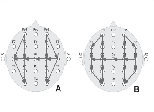 Neonatal EEG montages. A: Restricted 10–20 system using nine electrodes; B: Full 10–20 system of electrode placement using 17 electrodes. Note the bipolar derivations: anteroposterior right and left, as well as a coronal run including the central midline