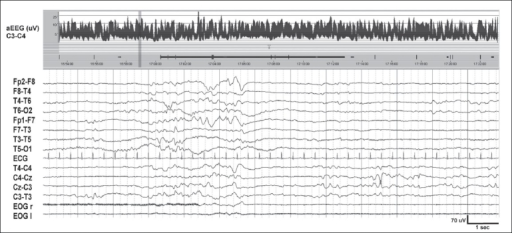 Trace discontinu in a neonate with moderately severe HIE. Background activity is of low voltage (<20 μV). The discontinuous periods, with a mean voltage of 10 μV, are interrupted by bursts of EEG activity of 2–3 seconds duration. aEEG trend covering 30 minutes shows a band width of 2.5–7 μV. Sleep–wake cycling is absent
