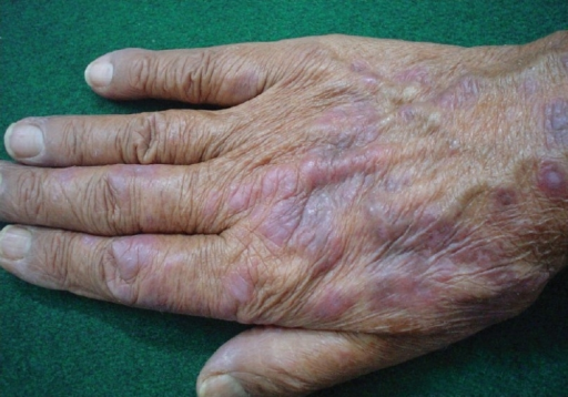 Photolichenoid lesions on hands