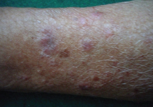 Lesions on photo-exposed parts of forearm
