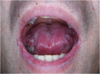 how to heal cold sores in mouth throat