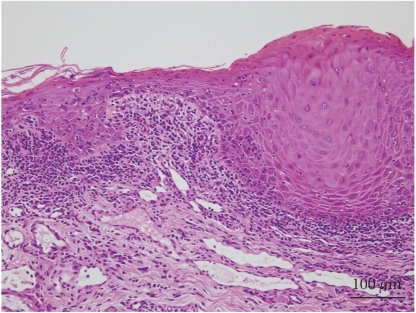 Histological findings of the oral lesion.  Severe lichenoid dermatitis with dyskeratotic cells.