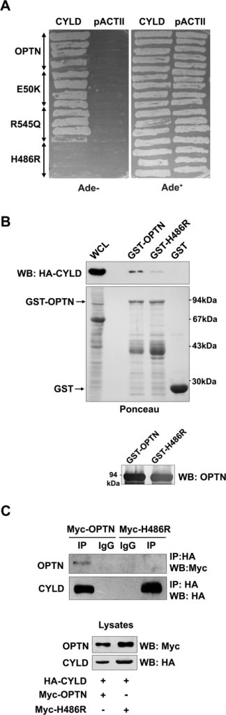 H486R optineurin is defective in interaction with CYLD.Yeast strain PJ69-4A was co-transformed with wild-type optineurin or its mutants and CYLD. Transformants were grown on selection media lacking adenine to assay interaction. GST-optineurin, GST-H486R or GST alone bound to glutathione agarose beads were incubated with lysates of HeLa cells transfected with HA-CYLD. The bound proteins were eluted and immunoblotted with anti-HA antibodies. Western blot was done with optineurin antibody (lower panel) to confirm the identity of the GST fusion proteins. HeLa cells were co-transfected with HA-CYLD and Myc-OPTN or Myc-H486R. Lysates were immunoprecipitated with anti-HA antibody and subjected to western blotting. WCL, whole cell lysate.