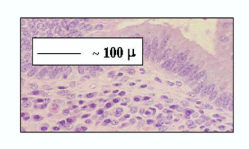 Higher magnification of Figure 1, showing plasma cells below the uterine glandular epithelium.