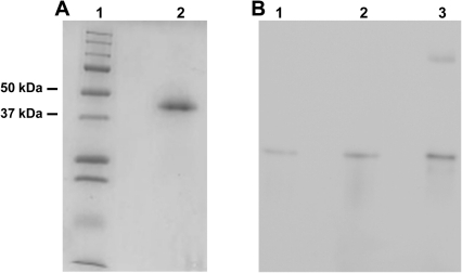Protein purity and Western blot analyses.(A) 12% reduced SDS-PAGE showing purity of the purified Cbl-binding protein from mouse submaxillary glands. Lane 1) marker; Lane 2) purified mouse TC (see Materials and Methods for details). (B) Western blot employing anti-mouse antibodies on proteins separated by 10% native PAGE. Lane 1) approx. 60 fmol purified mouse TC (approx. 40kDa); Lane 2) extract of the Cbl-binder from mouse submaxillary glands corresponding to a total amount of Cbl+UB12BC of 64 fmol; Lane 3) mouse serum corresponding to a total amount of Cbl+UB12BC of 72 fmol.
