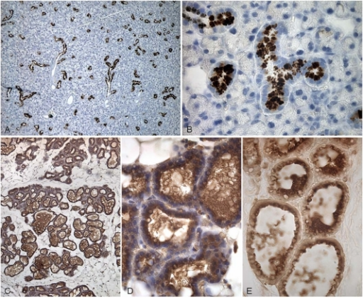 Immunohistochemical localization of TC in mouse tissues using anti-mouse TC.(A, B) The submaxillary gland shows positive staining in the granules of the granular, convoluted tubule cells. (C, D, E) Lactating mammary gland with some reaction in the luminal secretion. Magnifications: (A, C) X 75, (B) X 300, (D, E) X 475.