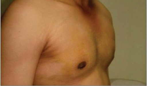 Glandular gynaecomastia: post-operative (oblique view)