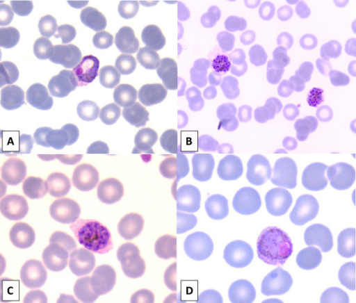 Plasmodium vivax in Giemsa-stained thin blood smear with all developmental stages present in peripheral blood. (A) Growing amoeboid trophozoite in enlarged red blood cell (RBC) with eosinophilic stippling (schuffner's dots). (B) Immature schizonts with clumps of brown pigment almost fill the enlarged RBCs. (C) Mature schizont with merozoites (about 14) and clumped pigment. (D) Macrogametocyte with diffuse brown pigment and eccentric compact chromatin.
