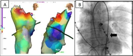 Activation mapping (3-D mapping system Ensite NavX), the earliest activation in the LVOT was found in aortomitral continuity (A). Fluoroscopic image in anteroposterior projection (B), the arrow shows the ablation catheter tip.