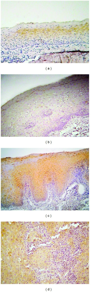 Immunohistochemical expression of phosphorylated mTOR (p-mTOR) in selected cases of (a) oral lichen planus (OLP), (b) normal mucosa (NM), (c) oral leukoplakia (OL), and (d) oral squamous cell carcinoma (OSCC) (immunohistochemistry, 100x magnifications).