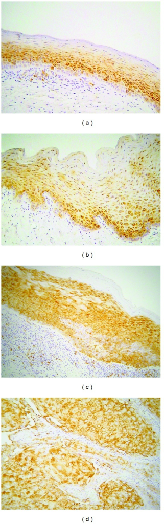Immunohistochemical expression of phosphorylated ribosomal protein pS6 (phospho-pS6) in selected cases of (a) oral lichen planus (OLP), (b) normal mucosa (NM), (c) oral leukoplakia (OL), and (d) oral squamous cell carcinoma (OSCC) (immunohistochemistry, 100x magnifications).