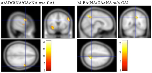 Clusters showing significant main effects of group on ADC and FA values between the narcolepsy with cataplexy (NA/CA) and narcolepsy without cataplexy (NA w/o CA) groups.a) ADC value was higher in the right inferior frontal gyrus (Brodmann area 9) for the NA/CA group than for the NA w/o CA group. b) In the NA/CA group, the FA value in the right parietal lobe (precuneus) was higher than that in the NA w/o CAgroup. Results are significant at FWE-corrected p<0.05. Color scale is for F statistic.